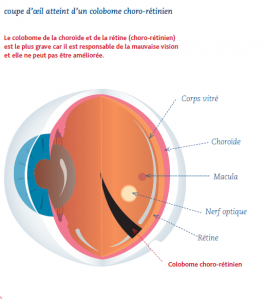 colobome chorio retinien
